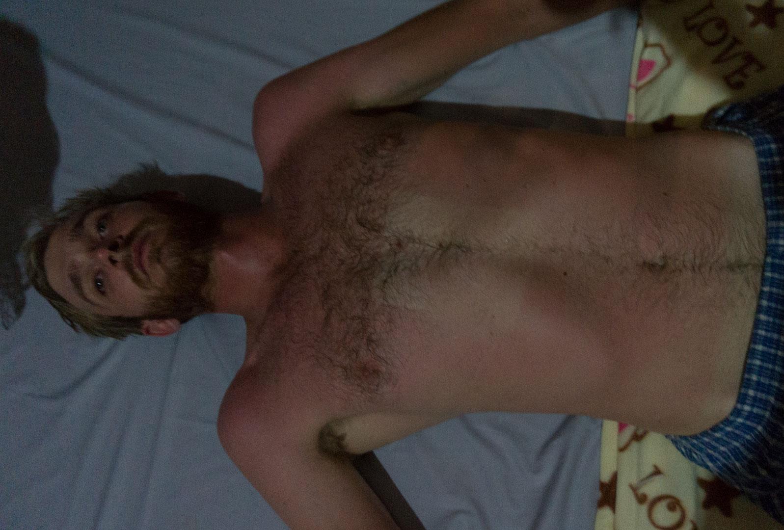 Mit dem E Book Reader auf der Brust eingeschlafen und der erste SOnnenbrand in 4 Monaten!!